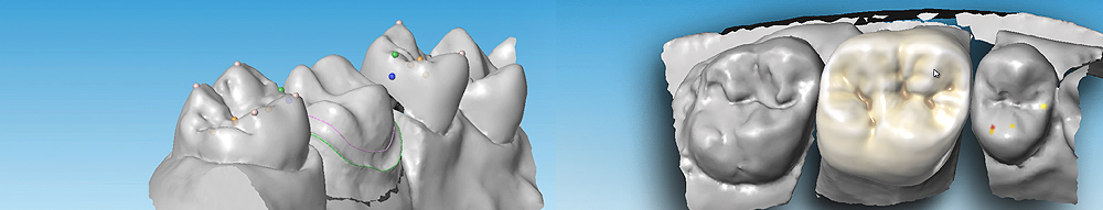 Dentalsoftware_DWOS_Dental_Wings_04